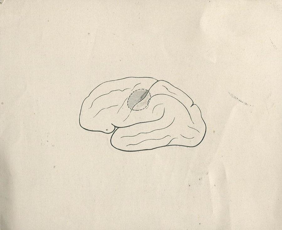 1-20-2-10-46_brain.jpg
