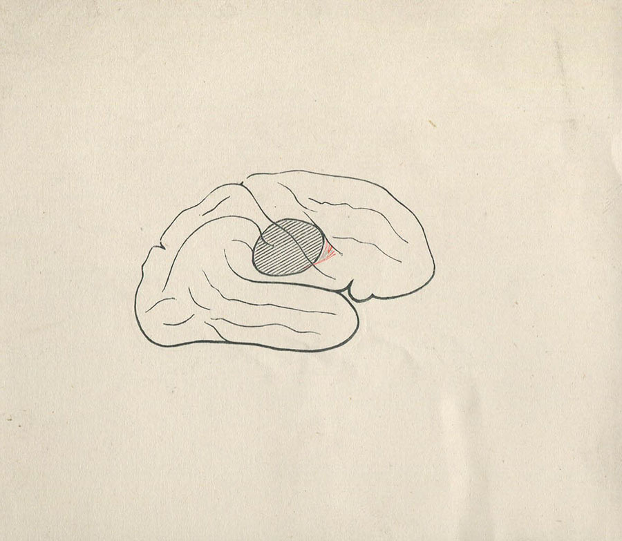 1-20-2-10-49_brain.jpg