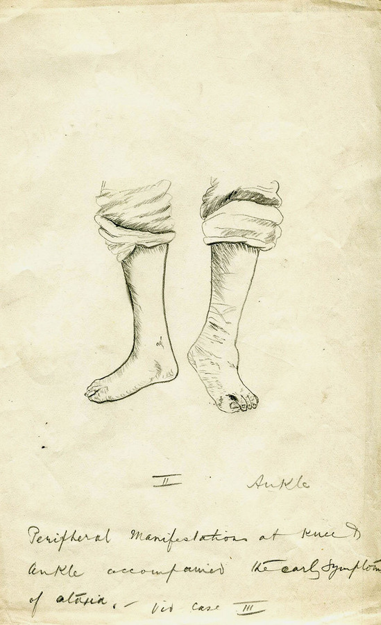 1-20-2-10-4_ankles.jpg