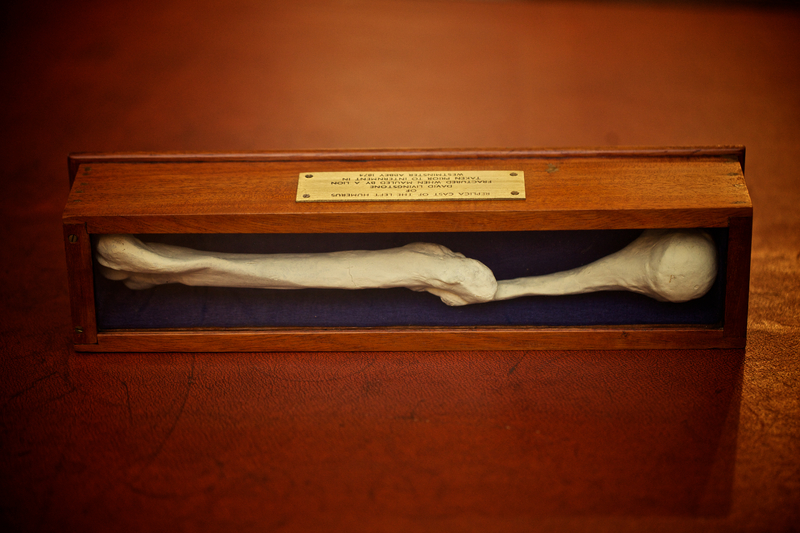 Replica cast of Livingstone's left humerus.jpg