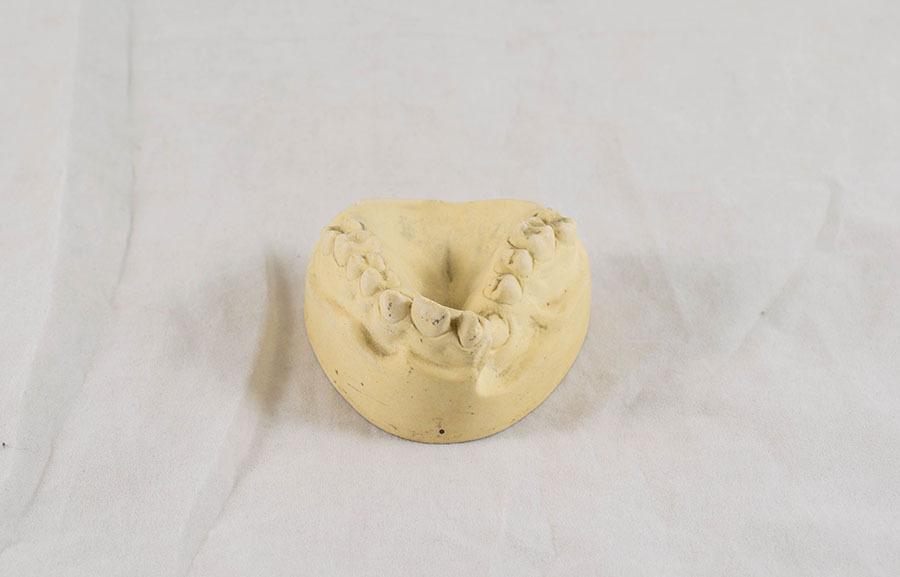HD.1148_dental impression_2.jpg