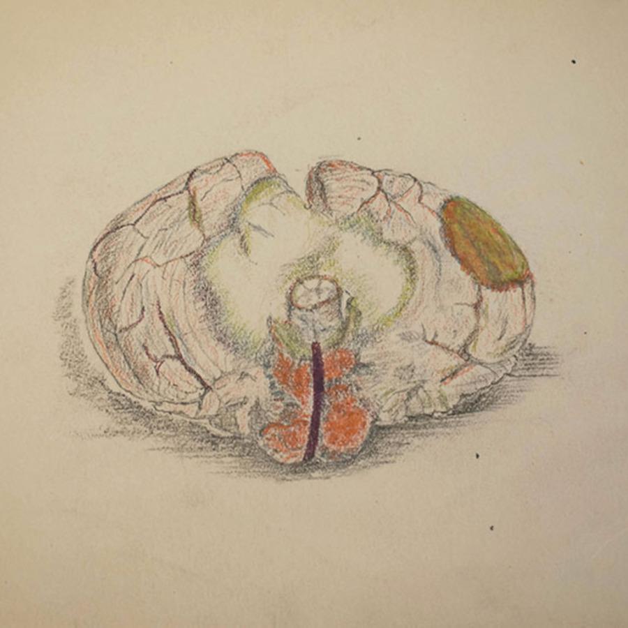 1-20-2-11_cerebellum_1.jpg