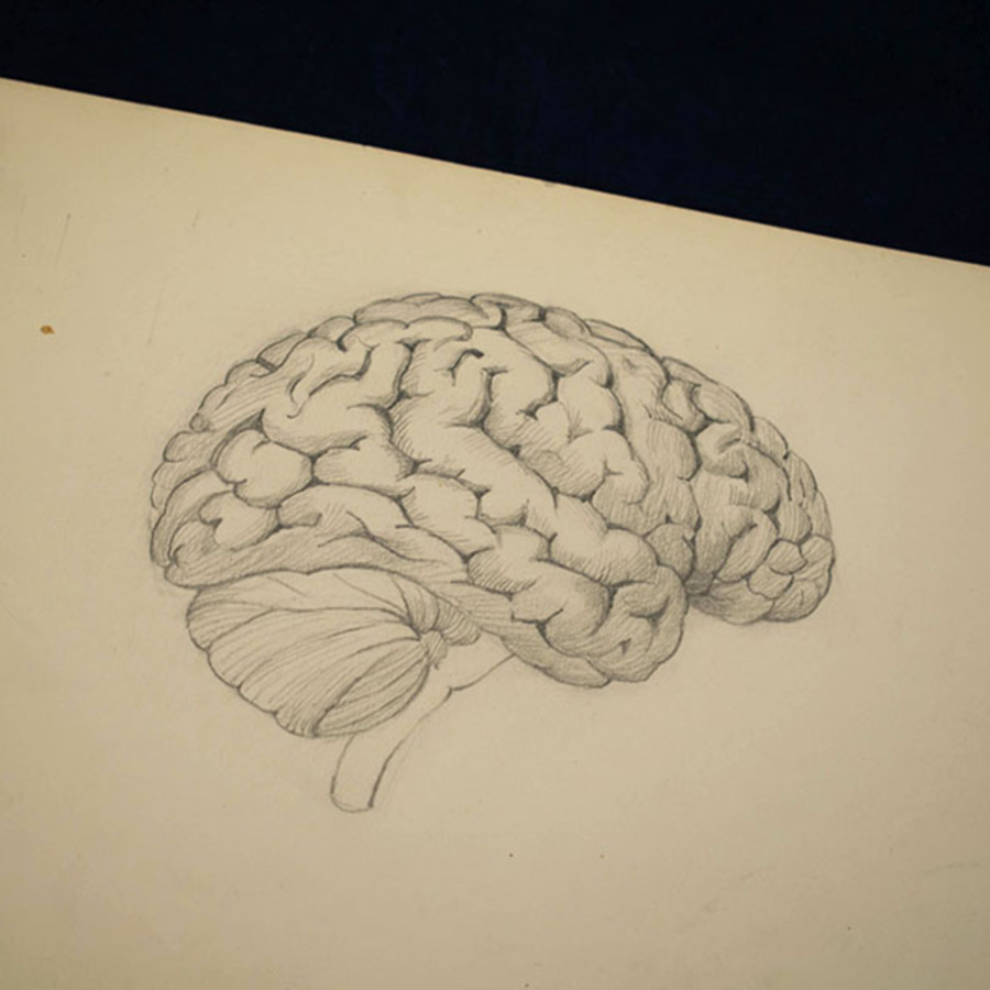 1-20-2-12_brain_3.jpg
