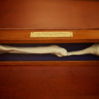 Replica cast of Livingstone's left humerus.jpg