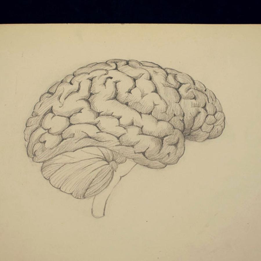 1-20-2-12_brain_2.jpg