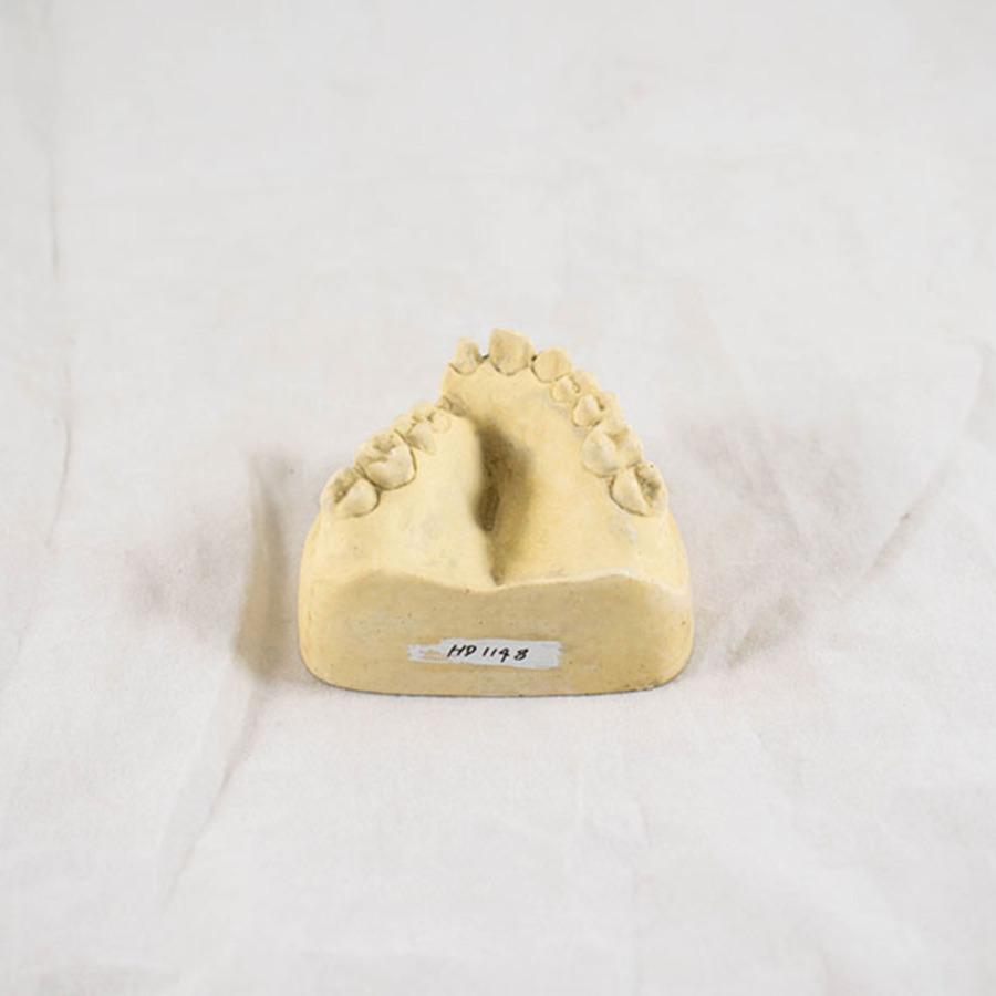 HD.1148_dental impression_3.jpg