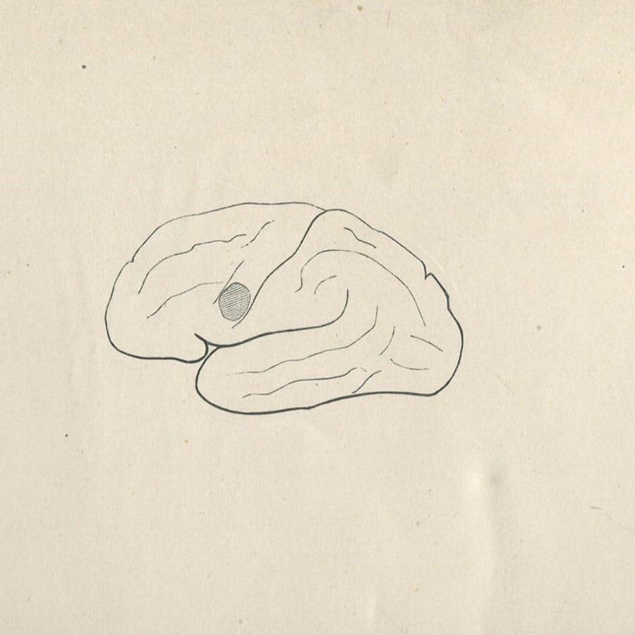 1-20-2-10-54_brain.jpg
