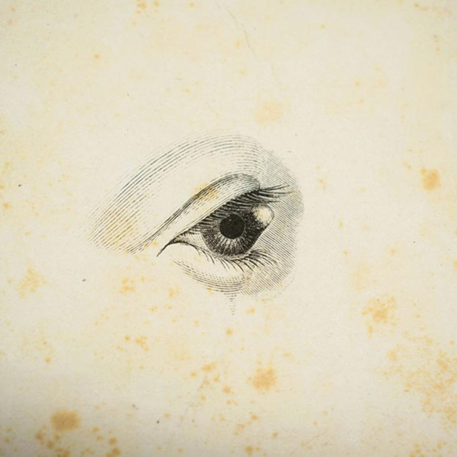 rcpsg 24-9-2-2_conical cornea.jpg
