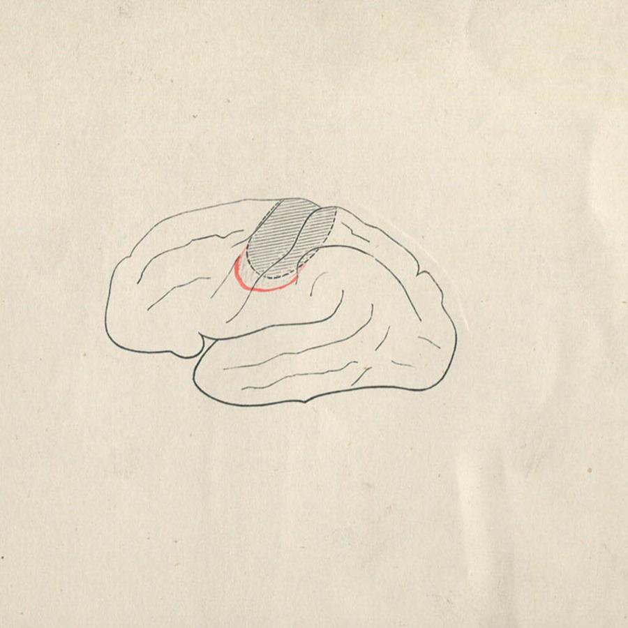 1-20-2-10-47_brain.jpg