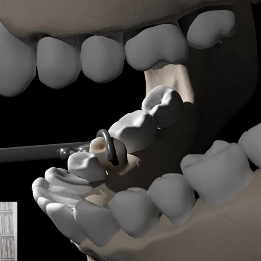 dental_key_bitesize.png