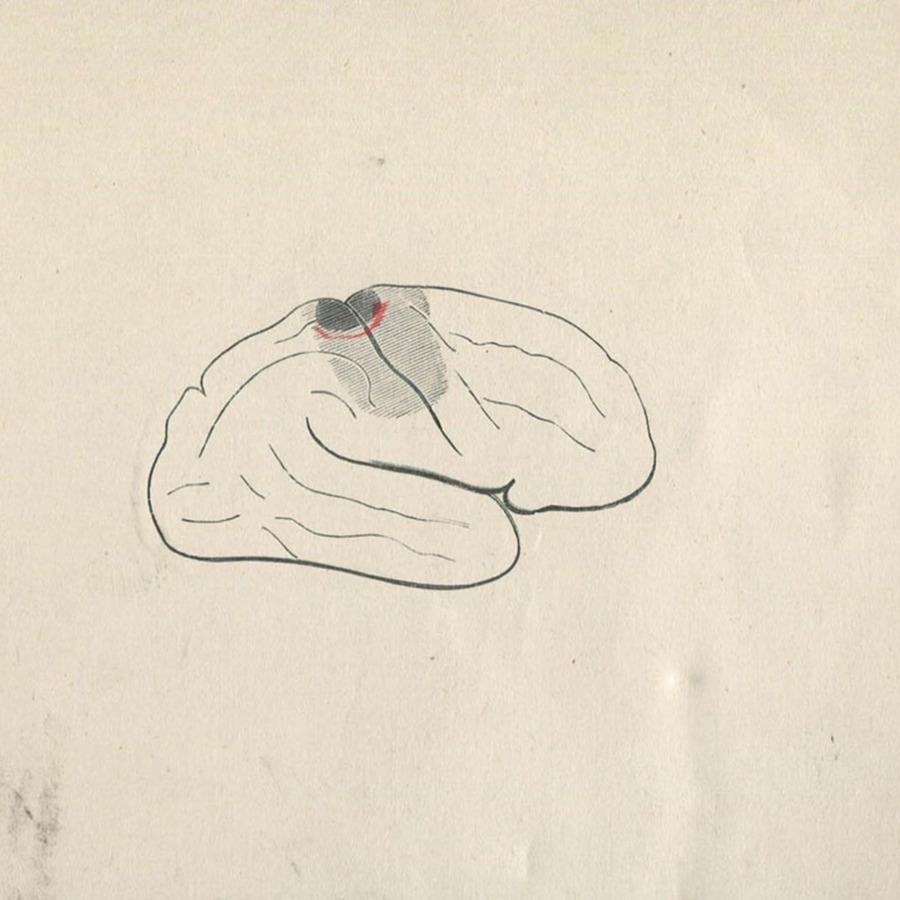 1-20-2-10-55_brain.jpg