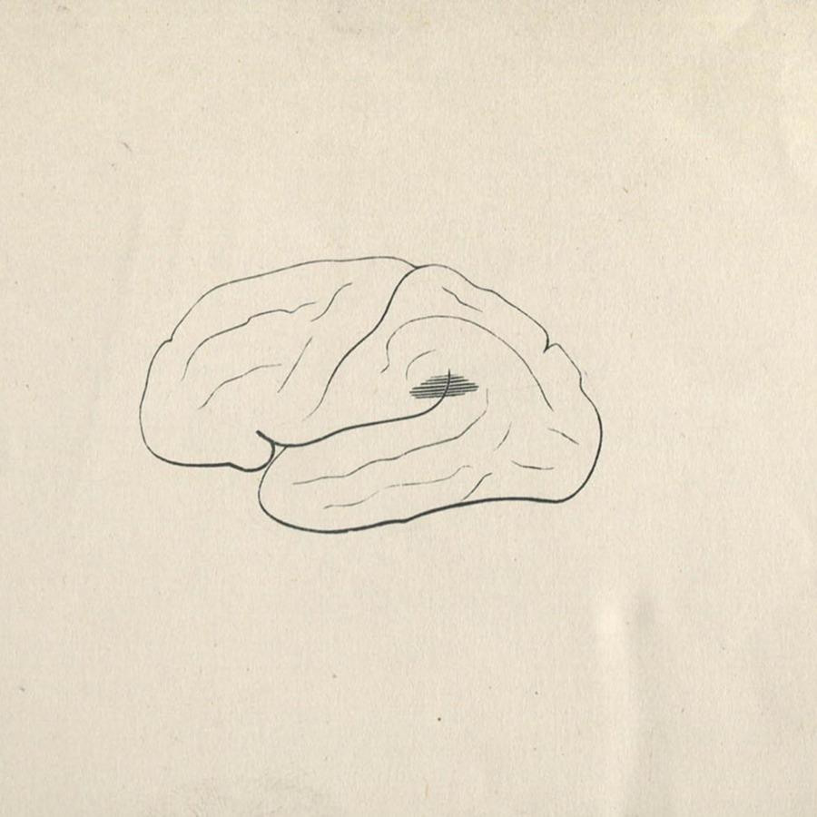 1-20-2-10-51_brain.jpg