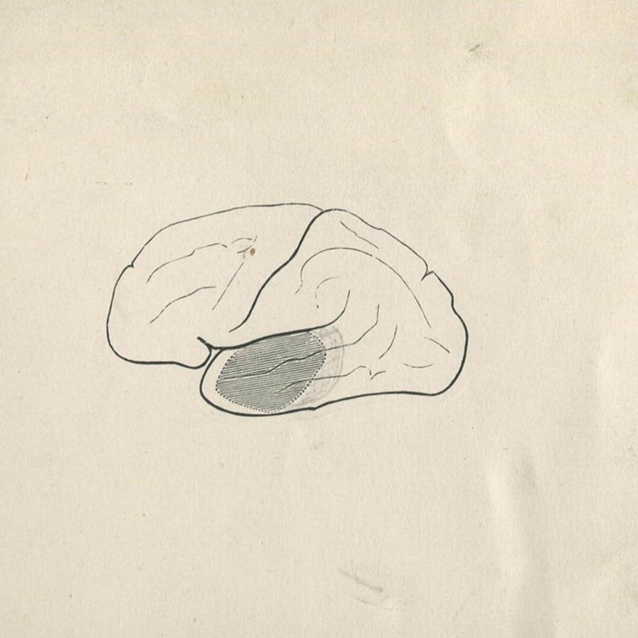 1-20-2-10-48_brain.jpg