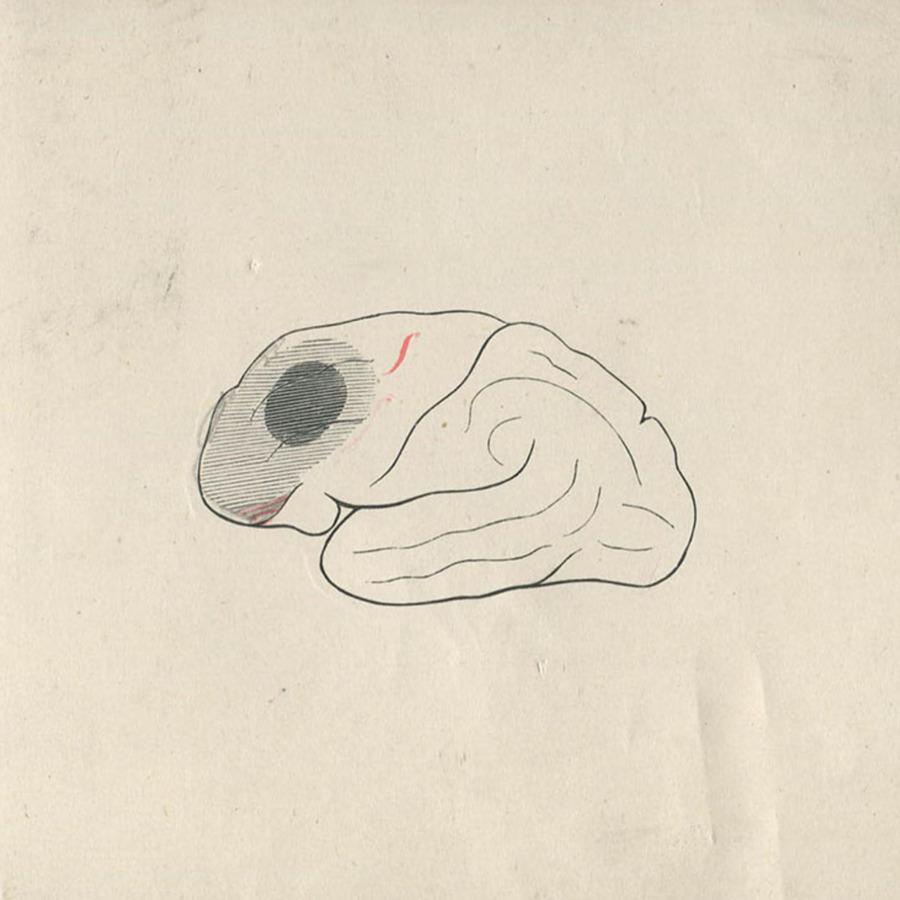 1-20-2-10-45_brain.jpg